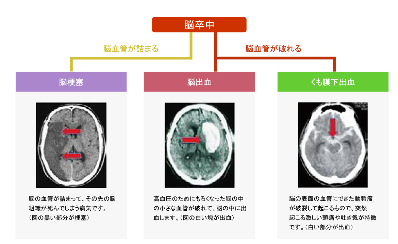 脳卒中の主な3つの種類