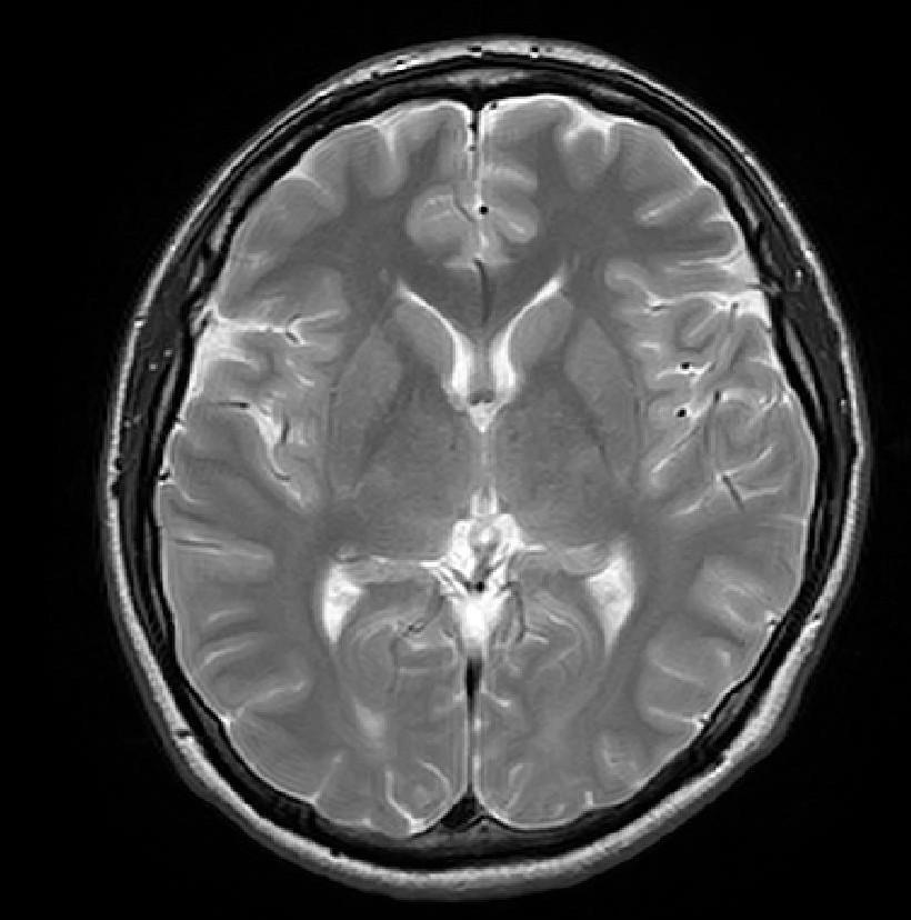 脳 MRI